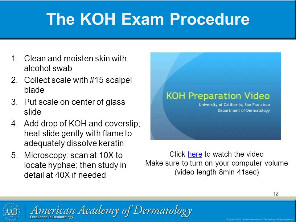 The KOH Exam Procedure Clean and moisten skin with alcohol swab