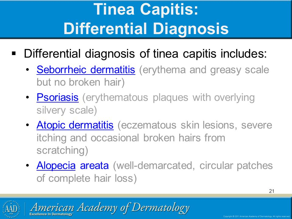 Tinea Capitis: Differential Diagnosis
