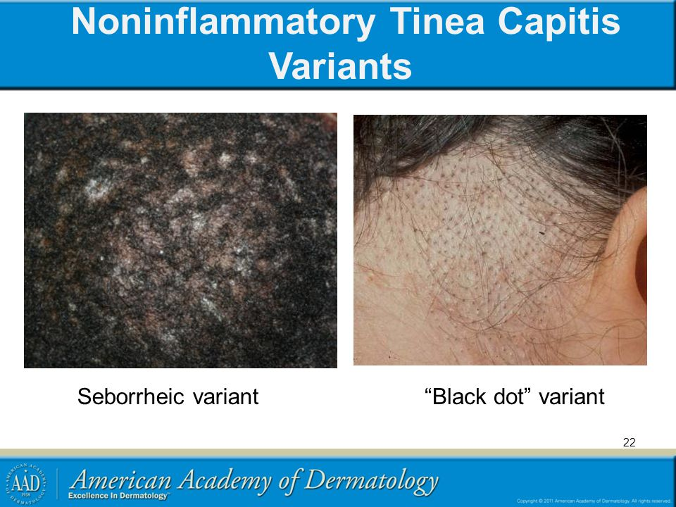 Noninflammatory Tinea Capitis Variants