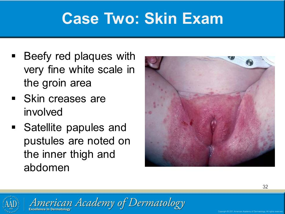 Case Two: Skin Exam Beefy red plaques with very fine white scale in the groin area. Skin creases are involved.