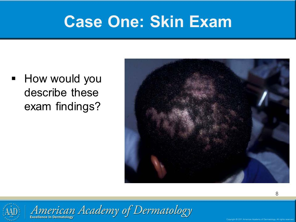 Case One: Skin Exam How would you describe these exam findings