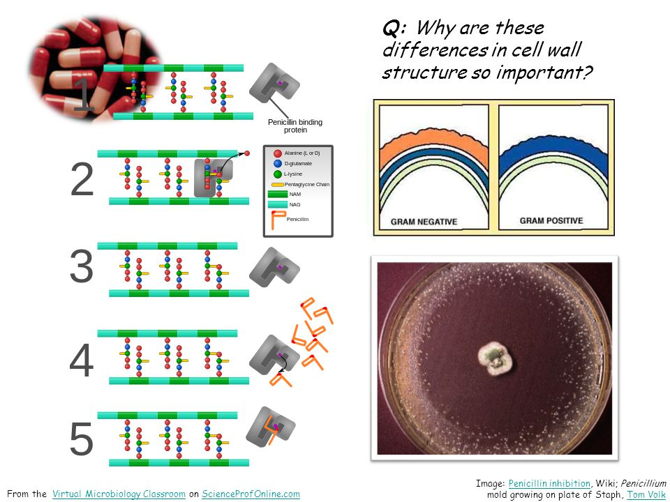 Q: Why are these differences in cell wall structure so important