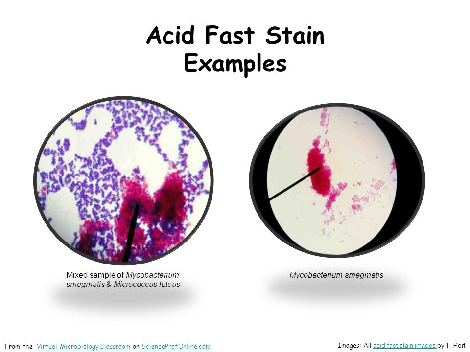 Acid Fast Stain Examples