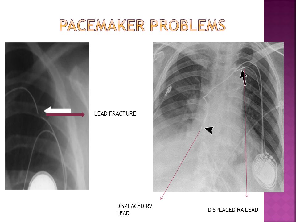 PACEMAKER PROBLEMS LEAD FRACTURE DISPLACED RV LEAD DISPLACED RA LEAD
