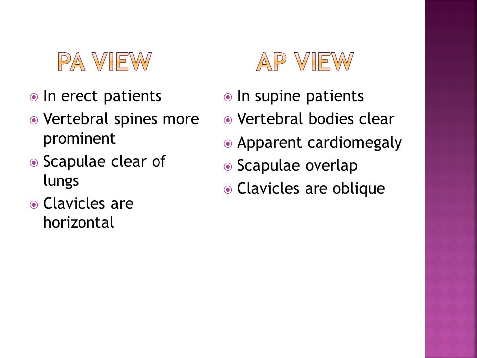 Pa view ap view In erect patients Vertebral spines more prominent