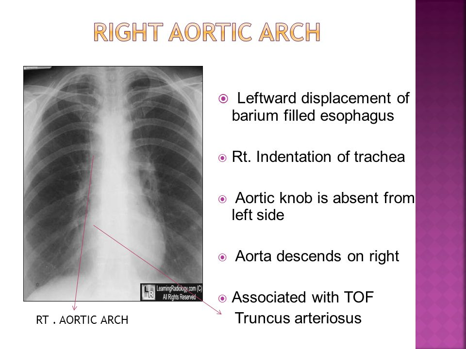 Right aortic arch Leftward displacement of barium filled esophagus