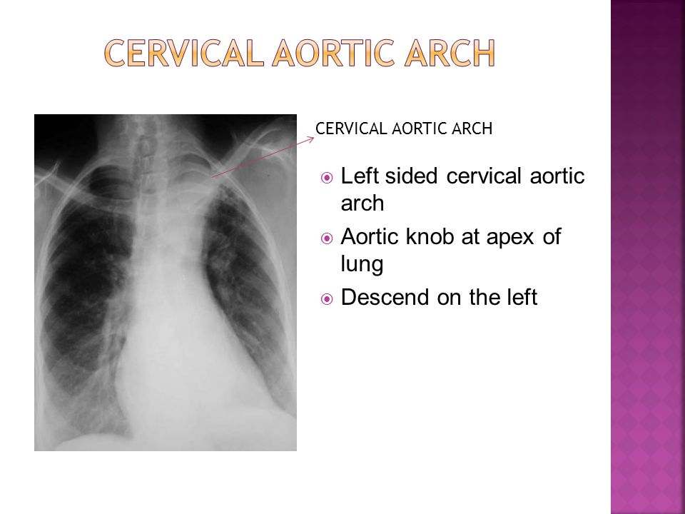 CERVICAL AORTIC ARCH Left sided cervical aortic arch