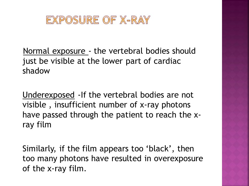 EXPOSURE of x-ray Normal exposure - the vertebral bodies should just be visible at the lower part of cardiac shadow.