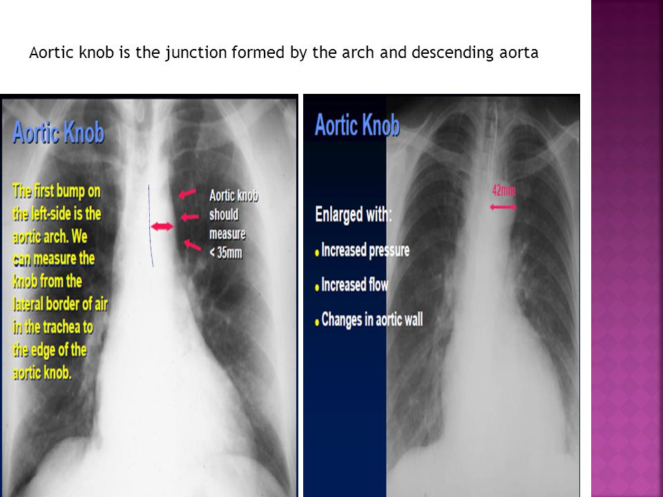 Aortic knob is the junction formed by the arch and descending aorta