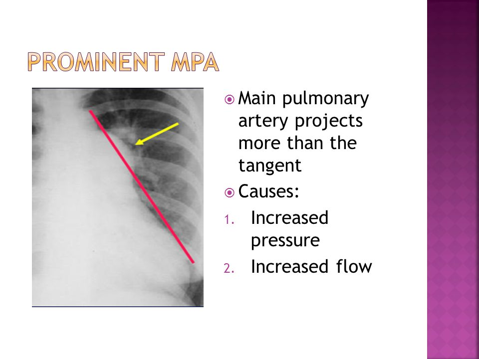Prominent mpa Main pulmonary artery projects more than the tangent
