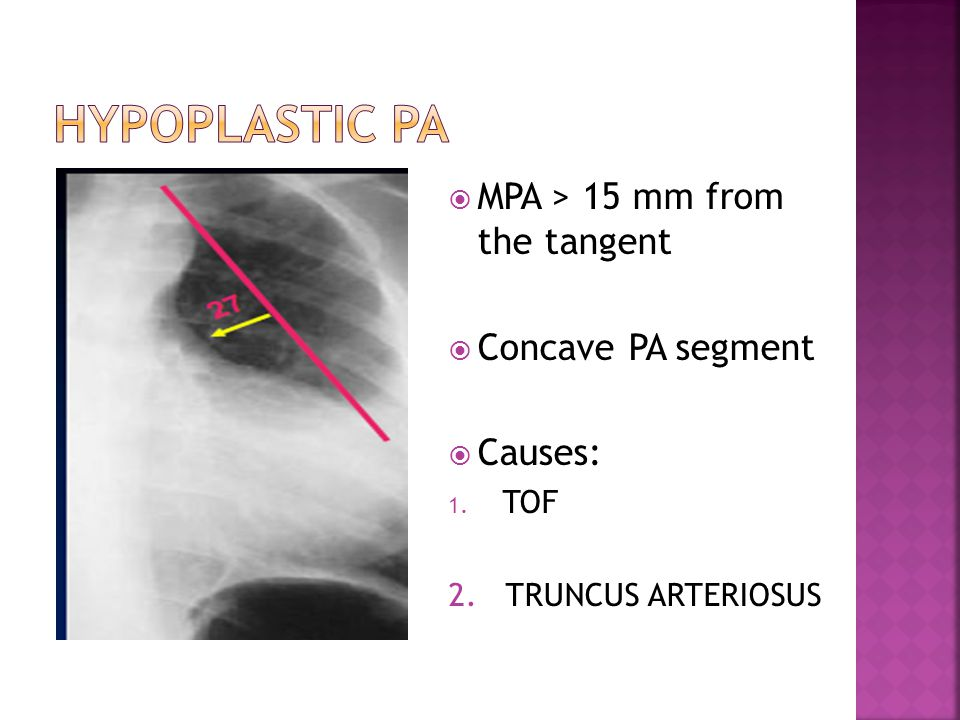 Hypoplastic pa MPA > 15 mm from the tangent Concave PA segment