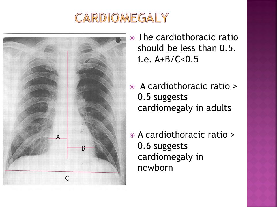 cardiomegaly The cardiothoracic ratio should be less than 0.5. i.e. A+B/C<0.5. A cardiothoracic ratio > 0.5 suggests cardiomegaly in adults.