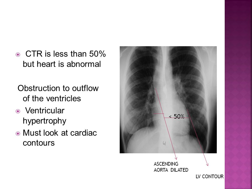 CTR is less than 50% but heart is abnormal