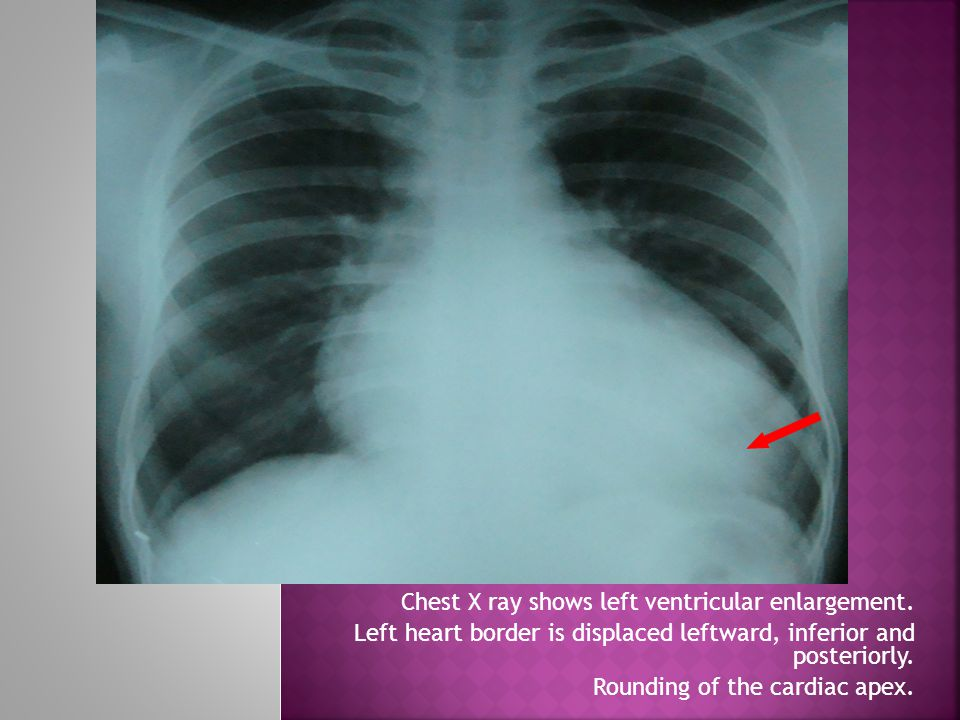 Left heart border is displaced leftward, inferior and posteriorly.