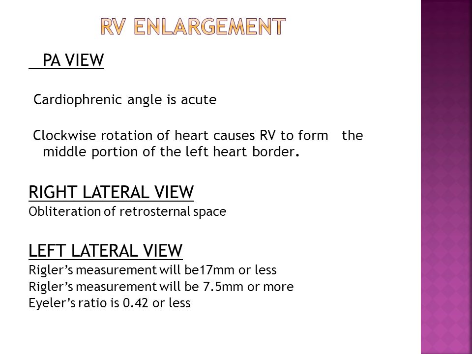 RV ENLARGEMENT RIGHT LATERAL VIEW LEFT LATERAL VIEW PA VIEW