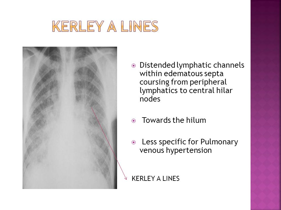 KERLEY A LINES Distended lymphatic channels within edematous septa coursing from peripheral lymphatics to central hilar nodes.