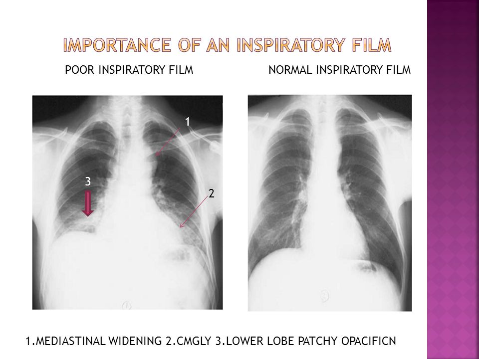 IMPORTANCE OF AN INSPIRATORY FILM