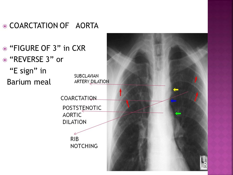 COARCTATION OF AORTA FIGURE OF 3 in CXR REVERSE 3 or E sign in