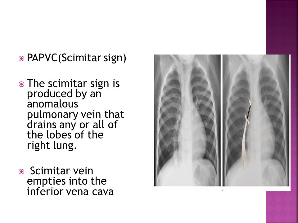 PAPVC(Scimitar sign) The scimitar sign is produced by an anomalous pulmonary vein that drains any or all of the lobes of the right lung.