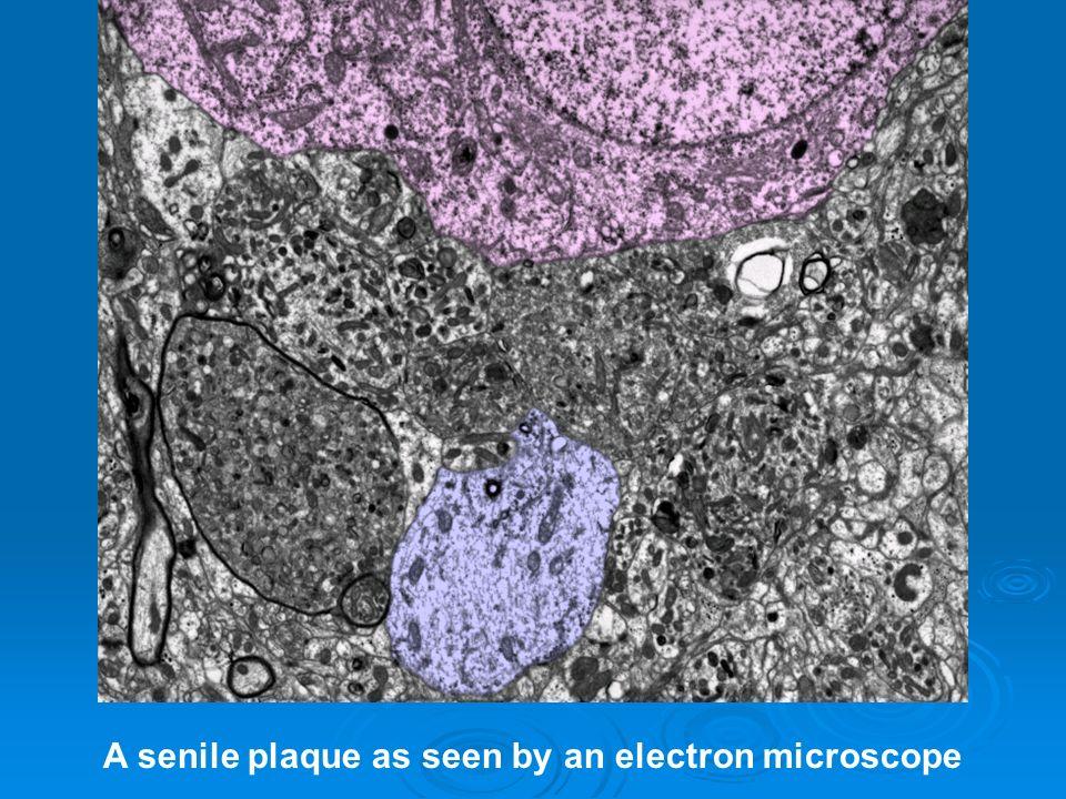 A senile plaque as seen by an electron microscope
