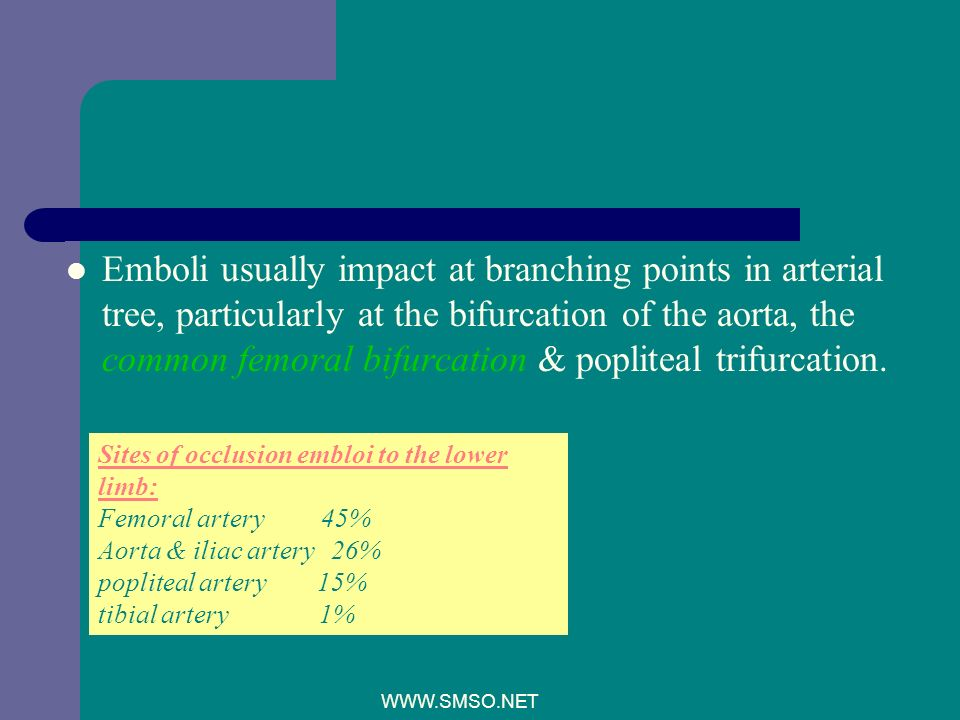 Emboli usually impact at branching points in arterial tree, particularly at the bifurcation of the aorta, the common femoral bifurcation & popliteal trifurcation.