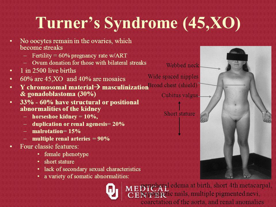 Turner's Syndrome (45,XO)