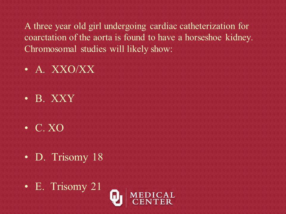 A. XXO/XX B. XXY C. XO D. Trisomy 18 E. Trisomy 21