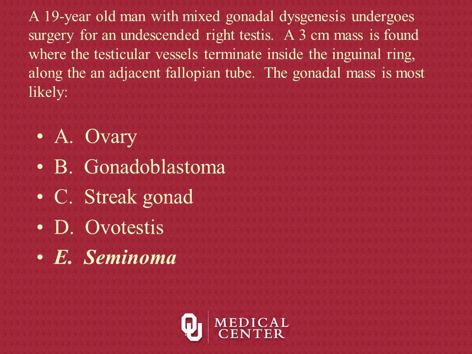 A. Ovary B. Gonadoblastoma C. Streak gonad D. Ovotestis E. Seminoma
