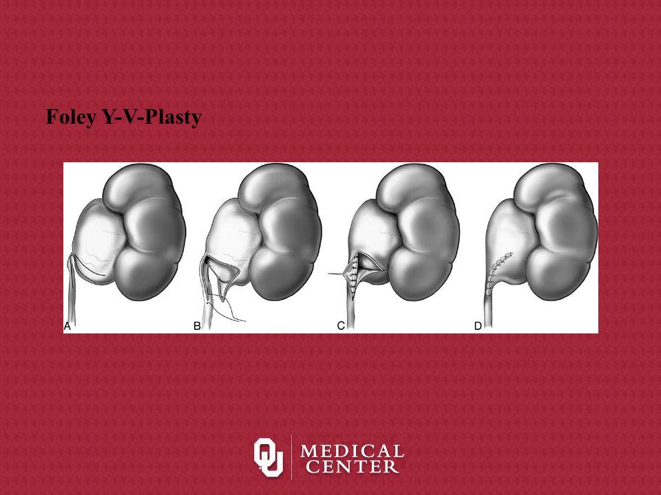 Foley Y-V-Plasty