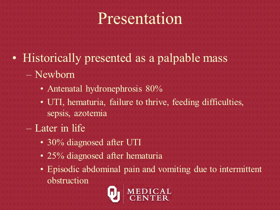 Presentation Historically presented as a palpable mass Newborn