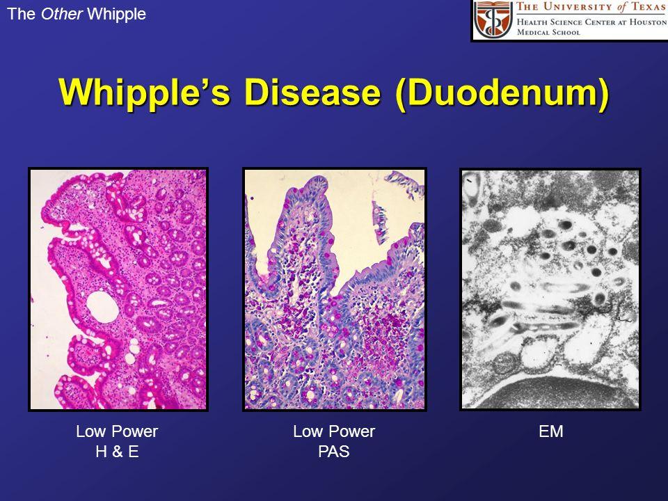 Whipple's Disease (Duodenum)