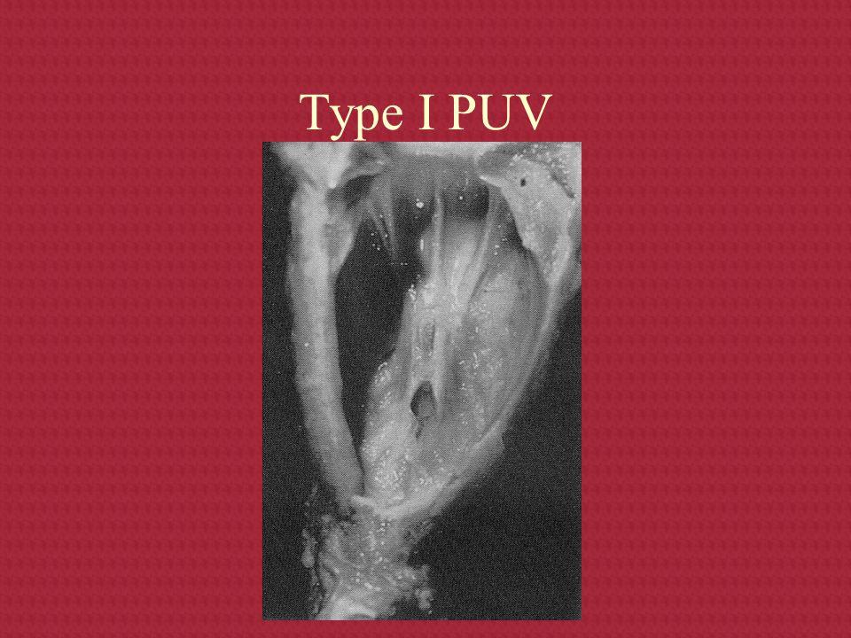 Type I PUV