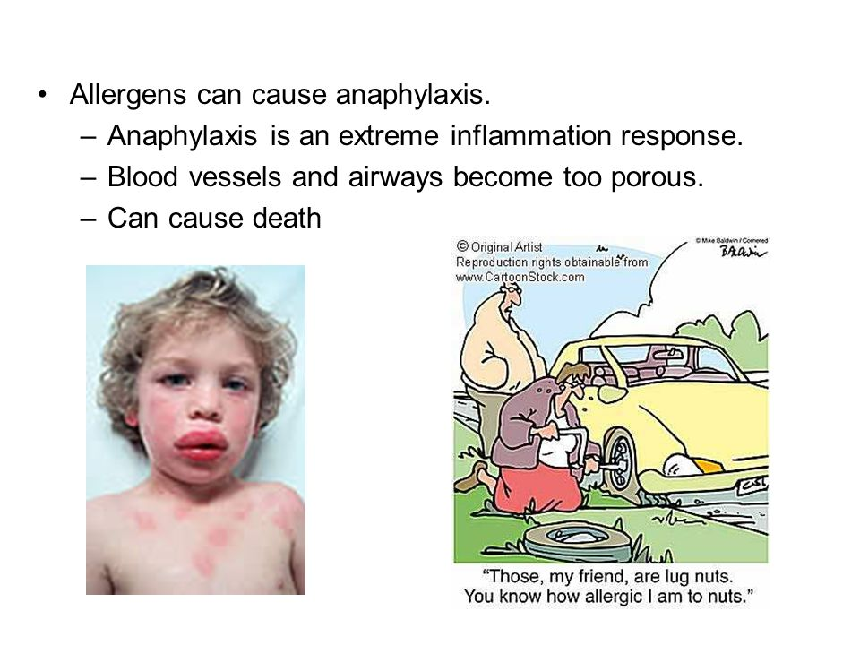 Allergens can cause anaphylaxis.