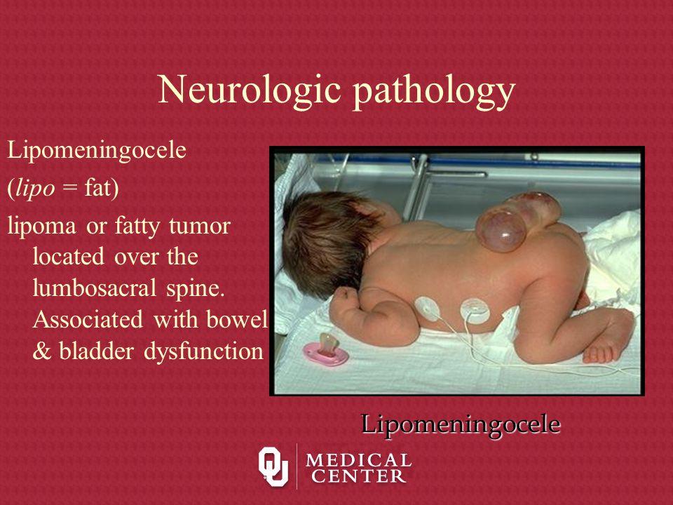 Neurologic pathology Lipomeningocele (lipo = fat)