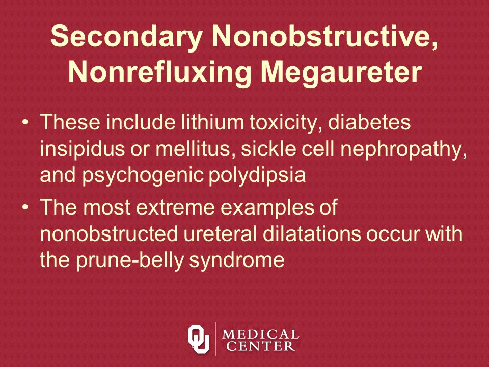 Secondary Nonobstructive, Nonrefluxing Megaureter