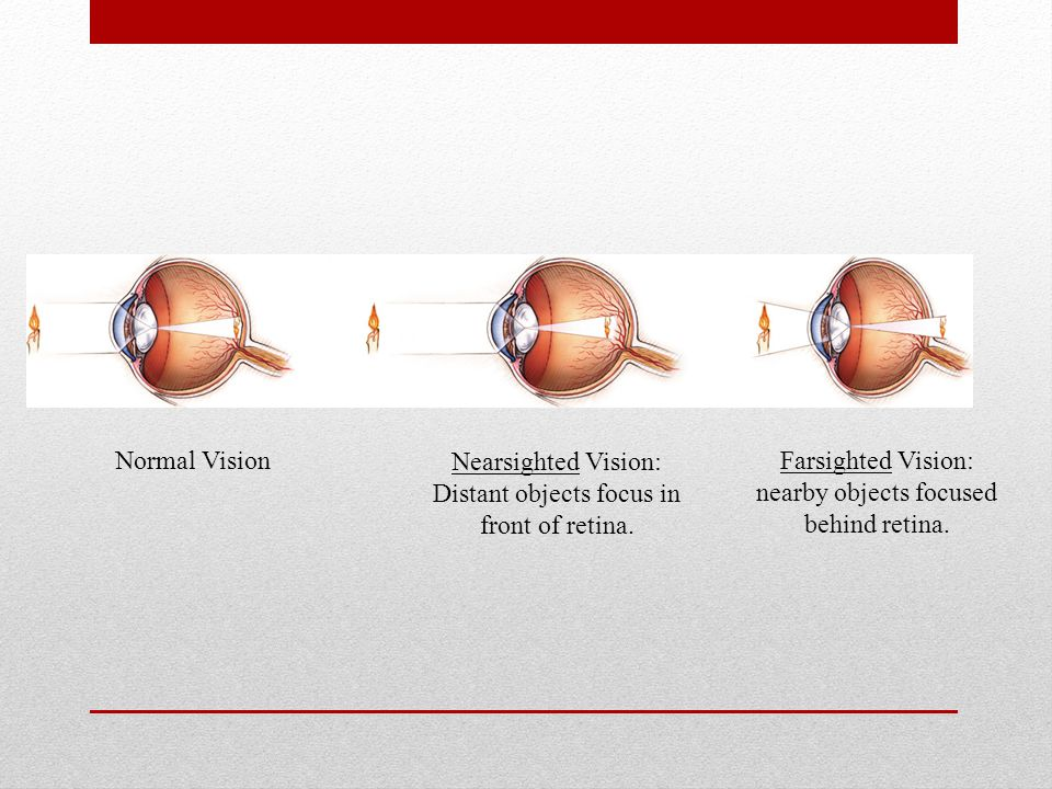 Nearsighted Vision: Distant objects focus in front of retina.