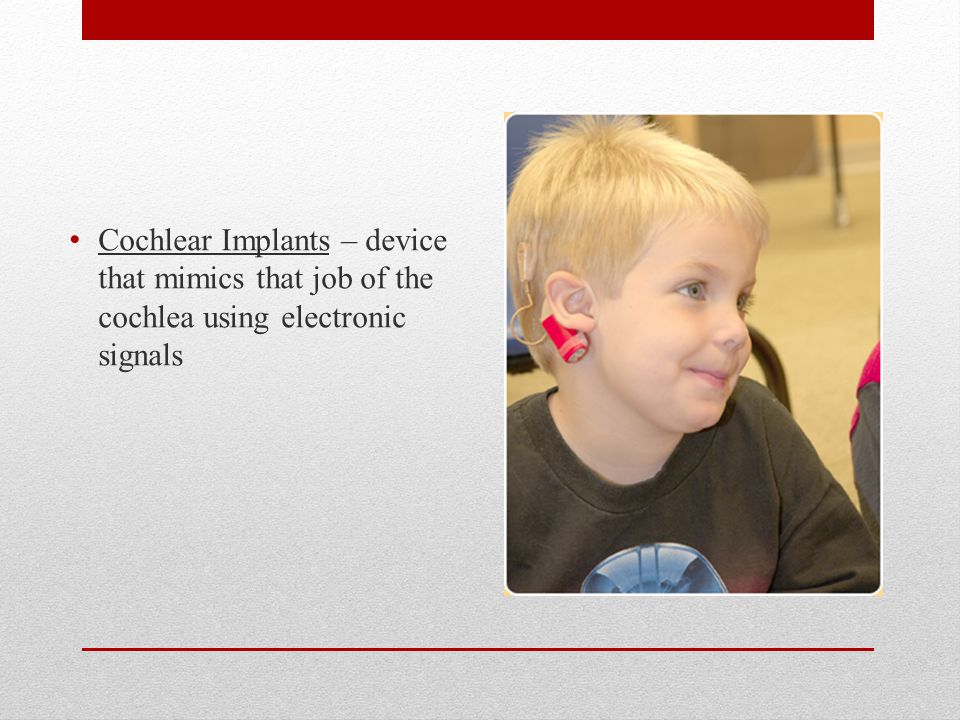 Cochlear Implants – device that mimics that job of the cochlea using electronic signals