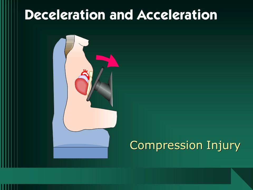Deceleration and Acceleration