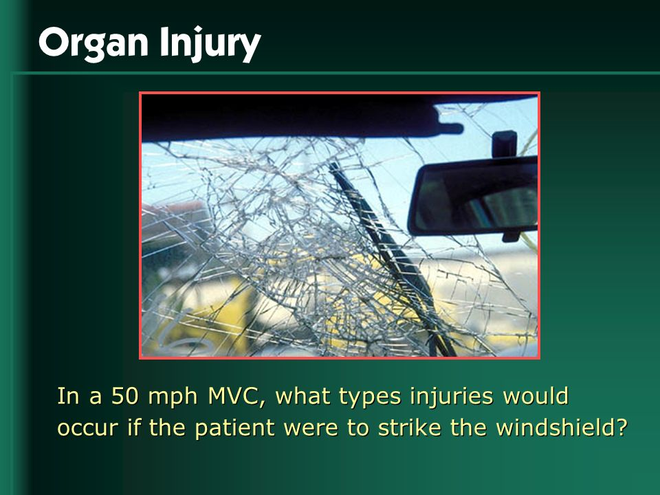 Organ Injury In a 50 mph MVC, what types injuries would occur if the patient were to strike the windshield