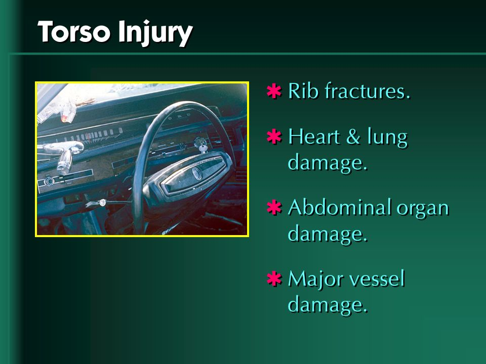 Torso Injury Rib fractures. Heart & lung damage.