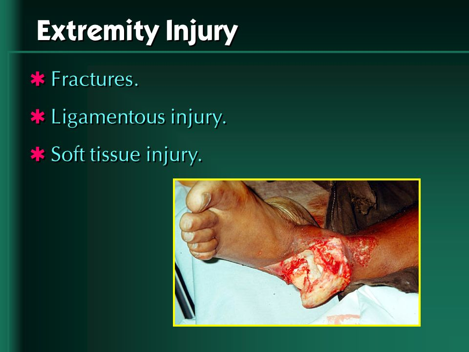 Extremity Injury Fractures. Ligamentous injury. Soft tissue injury.