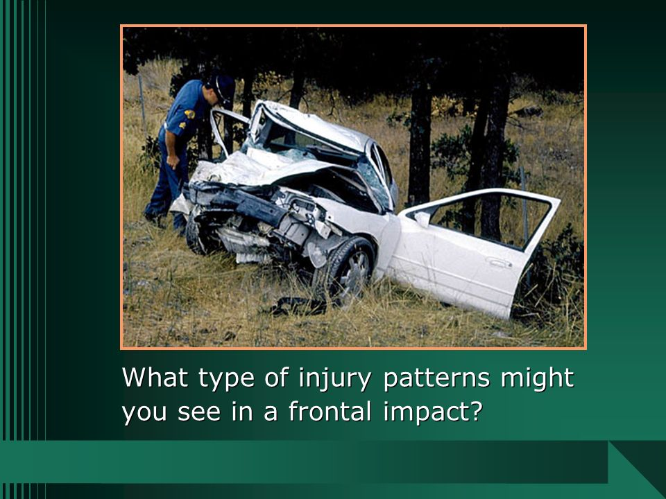 What type of injury patterns might you see in a frontal impact