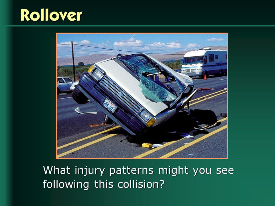Rollover What injury patterns might you see following this collision