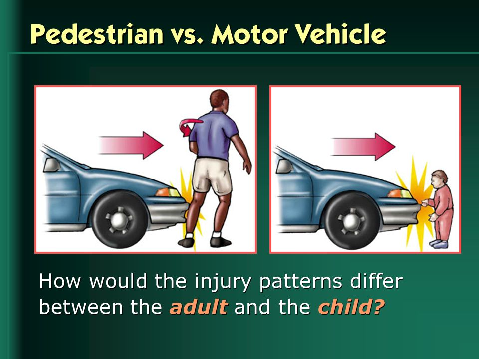 Pedestrian vs. Motor Vehicle