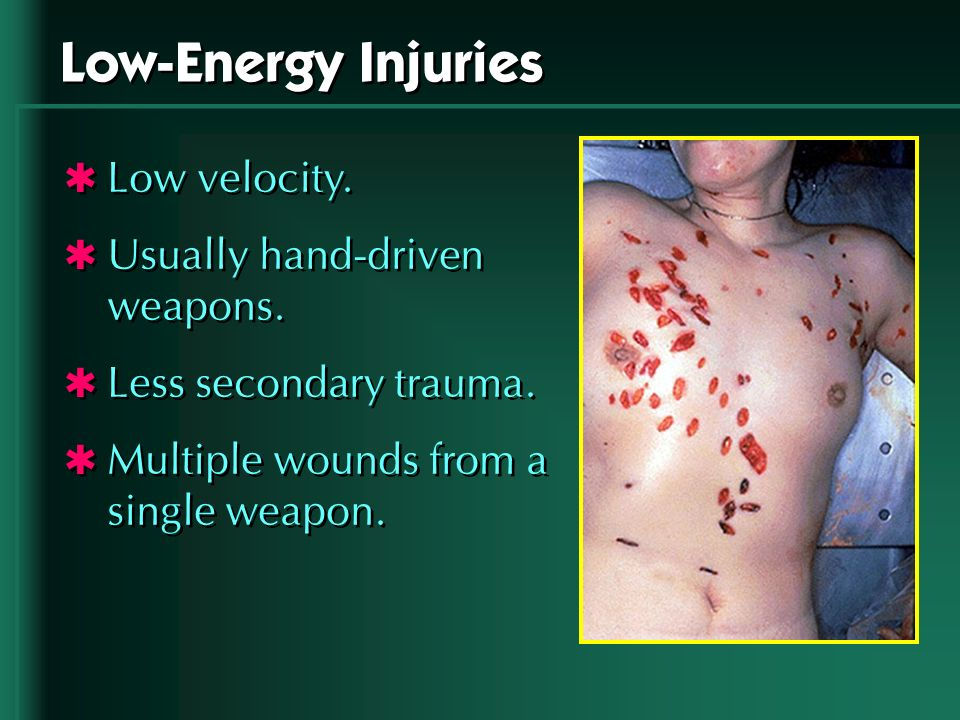 Low-Energy Injuries Low velocity. Usually hand-driven weapons.