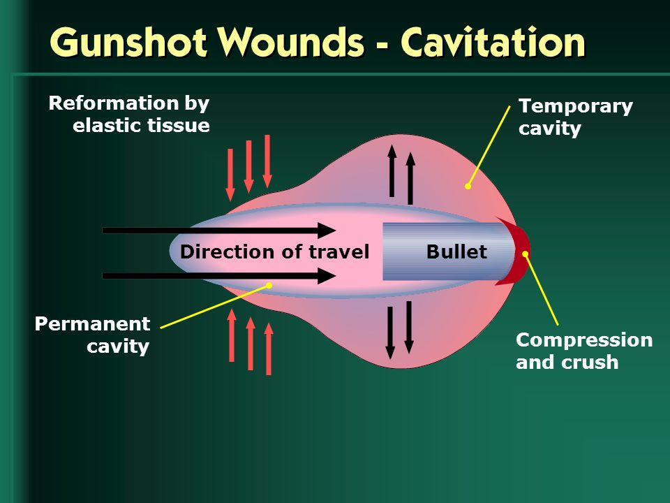 Gunshot Wounds - Cavitation