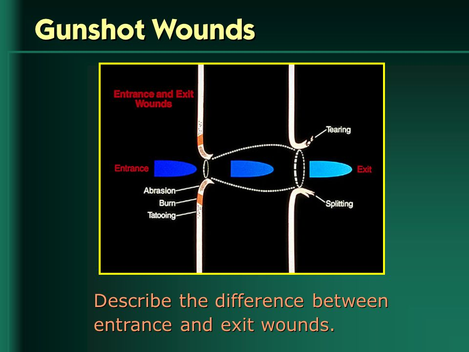 Gunshot Wounds Describe the difference between