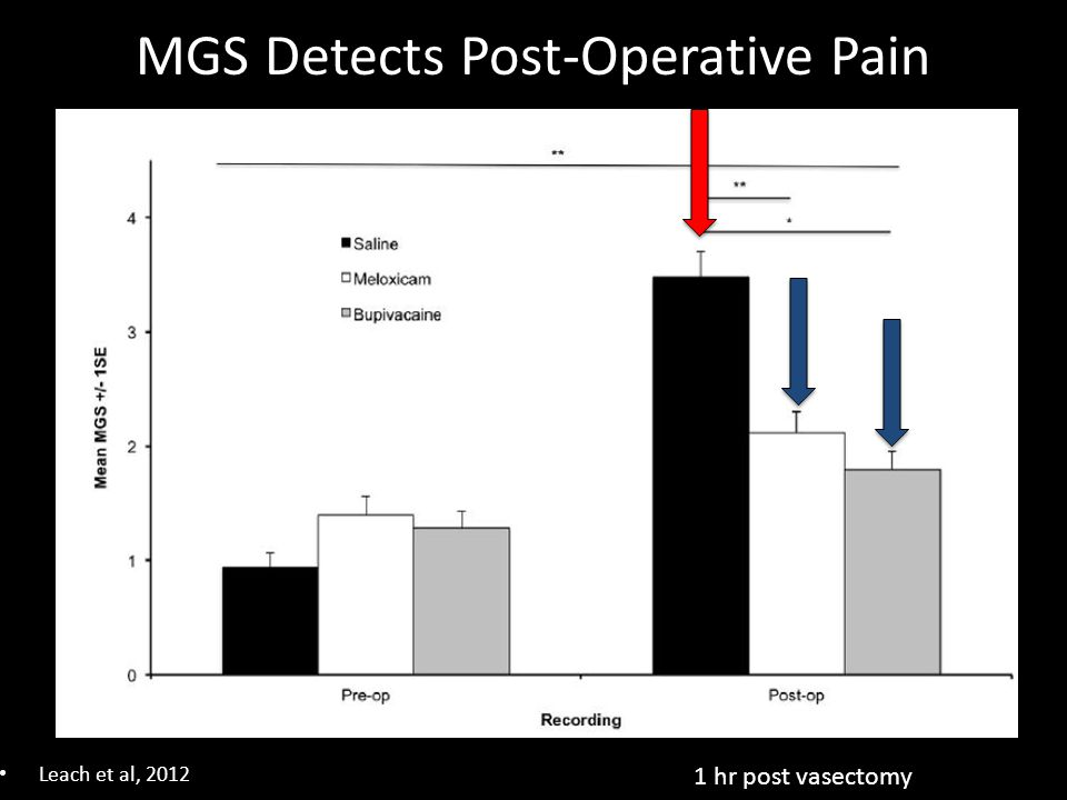MGS Detects Post-Operative Pain