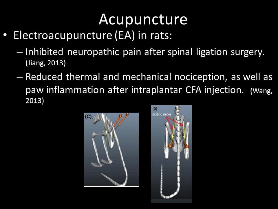 Acupuncture Electroacupuncture (EA) in rats: