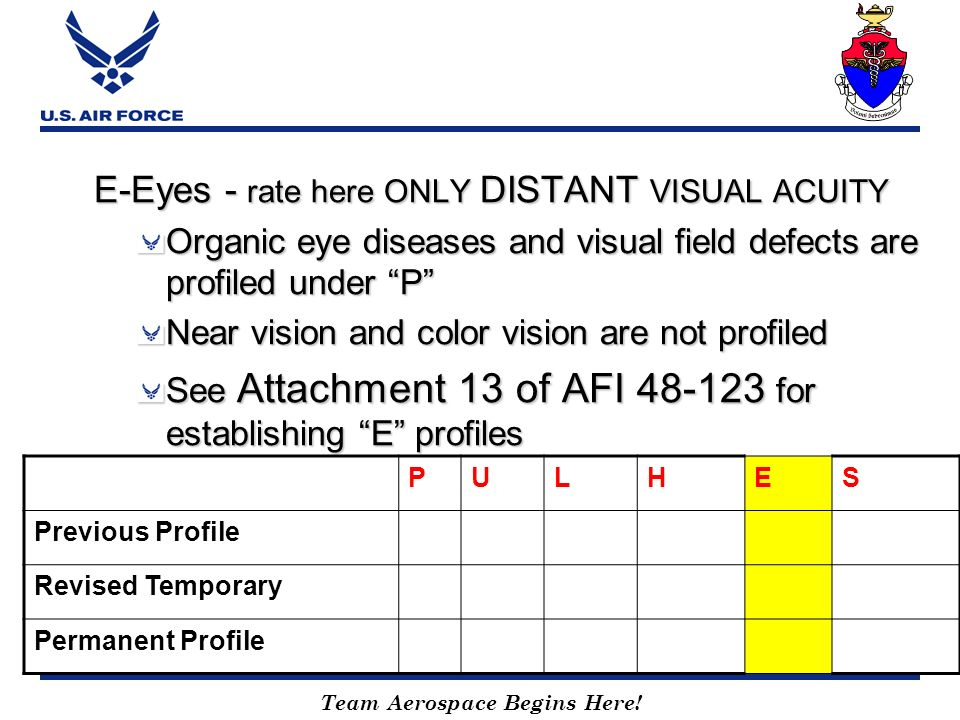 E-Eyes - rate here ONLY DISTANT VISUAL ACUITY